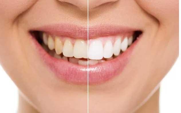 sbiancare-denti