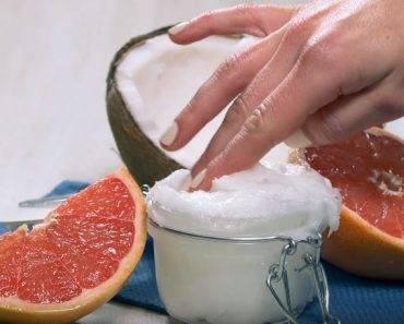 rimedi-naturali-cellulite