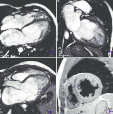 risonanza-magnetica-cuore